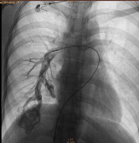 肺动静脉瘘