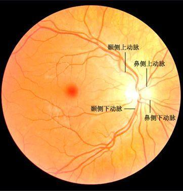 视网膜分支动脉阻塞