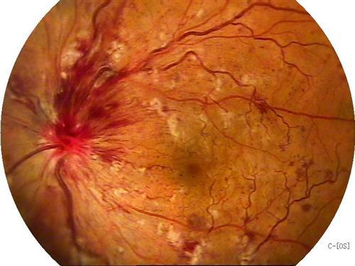视网膜静脉阻塞