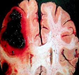 高血压脑出血