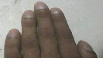 先天性厚甲症