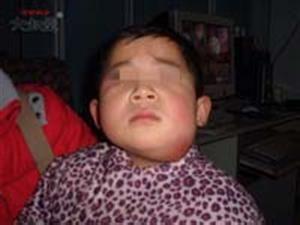 婴幼儿化脓性淋巴结炎