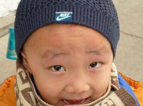 小儿色素荨麻疹