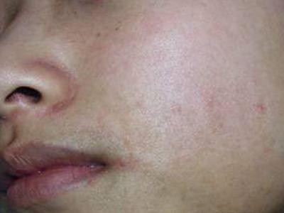 面颈部毛囊性红斑黑变病