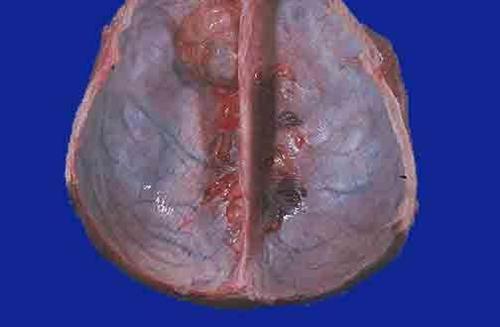 多发性脑膜瘤