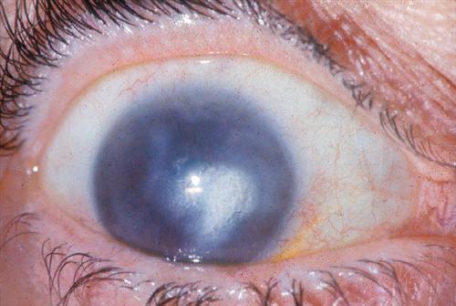 水痘性角膜炎