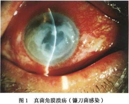 真菌性角膜炎