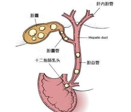 肝胆管结石