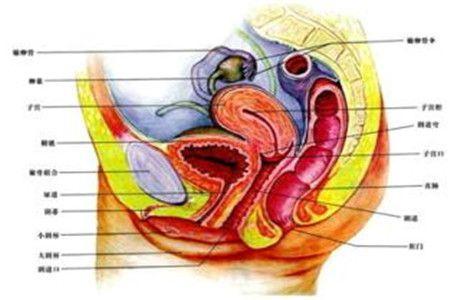 胆石性肠绞塞综合征