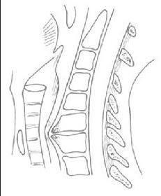 食管压迫型颈椎病