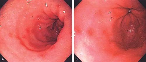 药物性胃病