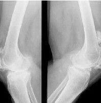 骨膜性软骨瘤