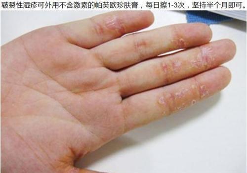 皲裂性湿疹