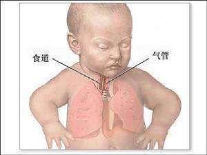乳汁吸入性肺炎