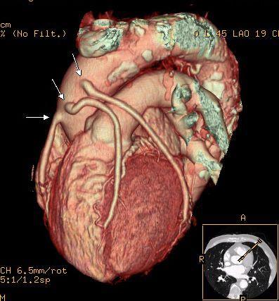 先天性冠状动脉瘤