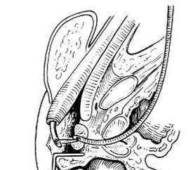 先天性后尿道瘘