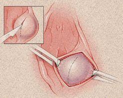 前庭肿大腺脓