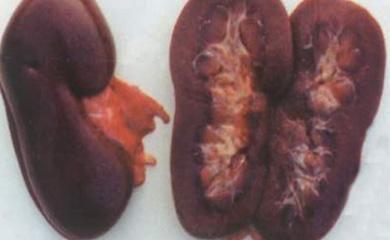 妊娠合并弓形虫病