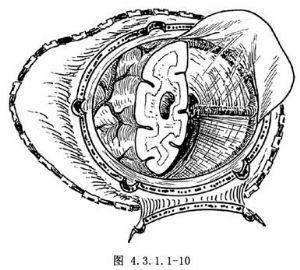 小儿大脑半球胶质瘤