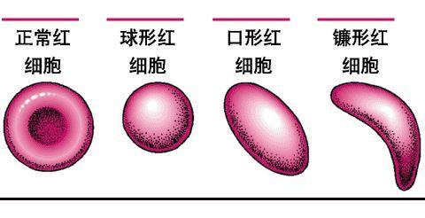 巨幼细胞贫血