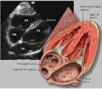 无症状型心肌缺血