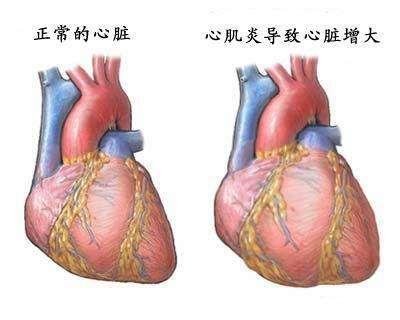 特异性心肌病
