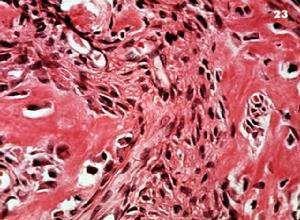 眼眶骨化纤维瘤