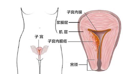 绝经后子宫内膜癌