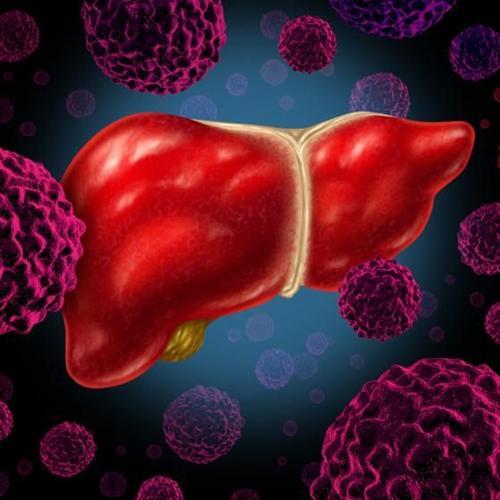 继发性肝癌