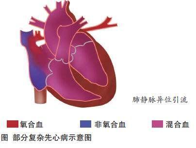 肺静脉异位引流