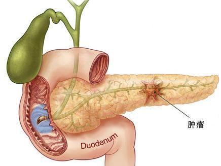 胰腺假性囊肿