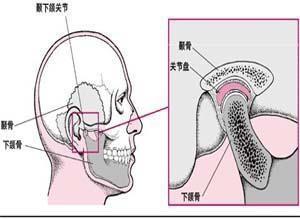 颞骨和下颔骨关节异常