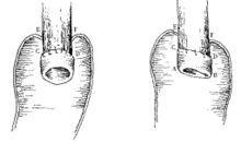 食管重复畸形