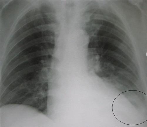军团菌肺炎