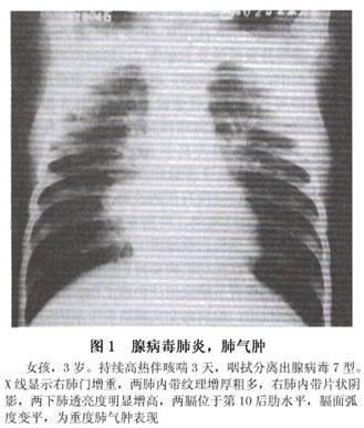 腺病毒肺炎