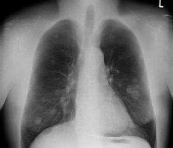 葡萄球菌肺炎