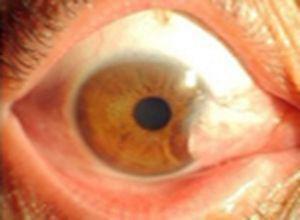 维生素A缺乏症所致的角膜溃疡病