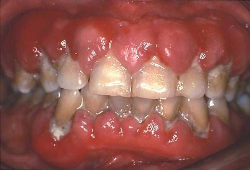 药物性牙龈增生