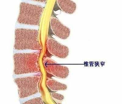 腰椎椎管狭窄