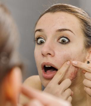 不同色斑需分开治 黄褐斑的治疗方法
