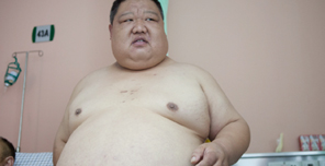 肥胖儿童,儿童肥胖,儿童减肥