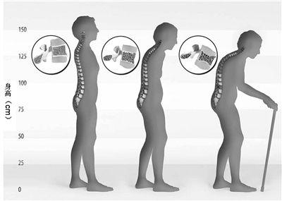 随着年龄的增长,椎体逐渐发生<a href=