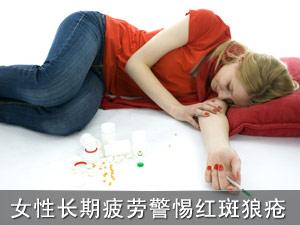 女性长期疲劳警惕红斑狼疮