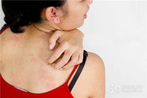 青年 女 皮肤 痕痒 过敏 红疹 荨麻疹_8797641_xl