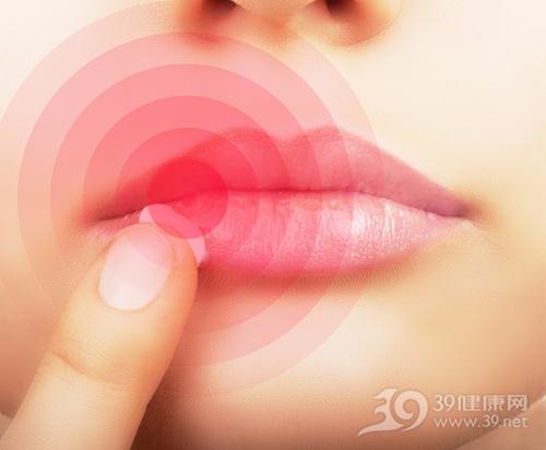 青年 女 嘴唇 干燥 爆裂 脱皮 冬天 寒冷 护唇 润唇膏_27040039_xxl