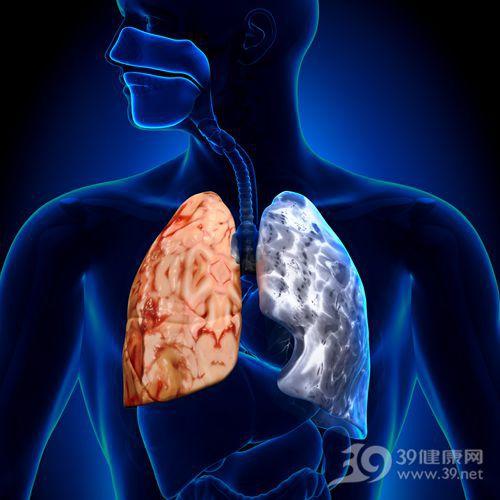 肺 器官 肺病 抽烟 灰霾 透视_29347969_xxl