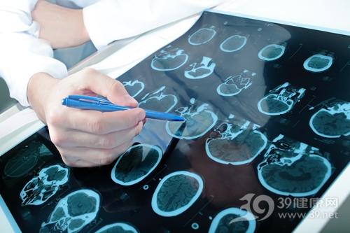 你知道脑肿瘤能活多久吗?