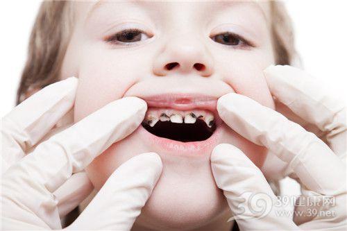 孩子 女 牙齿 蛀牙 龋齿 牙科_12342279_xxl