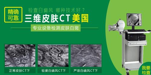 图片ct1