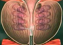 男性前列腺炎图片